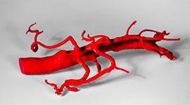 3D printed abdominal aorta